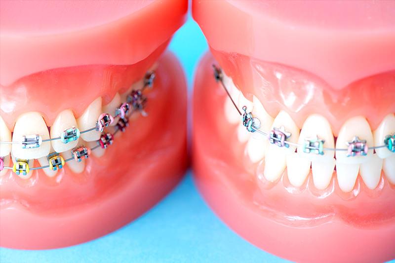 歯の模型・見本