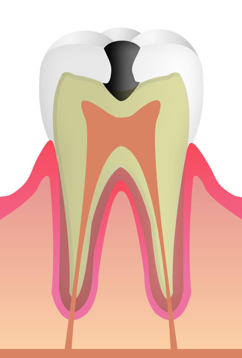 C3:歯の根の虫歯
