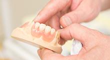 歯の治療の後の詰め物かぶせものに